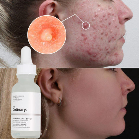 serum to close open pores