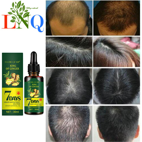 oils to stop hair loss
