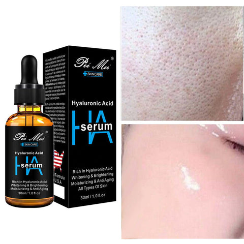 hyaluronic acid by pretty cowry