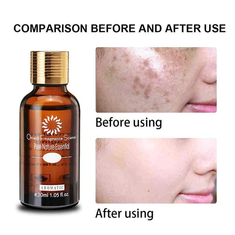 Ultra-bright blemish oil Skincare Pure natural Remove dark spots