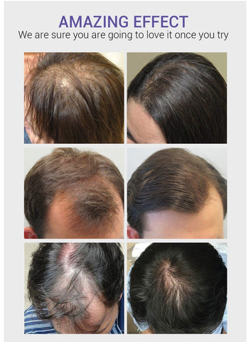 oil to stop hair loss disaar