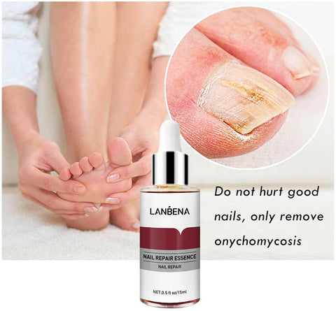how to eliminate toenail fungus definitively Lanbena