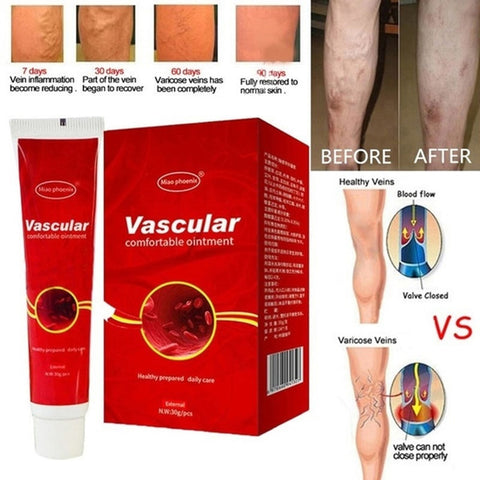 natural cream for varicose veins