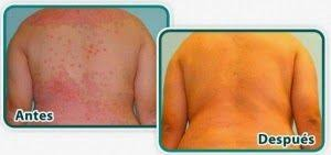 psoriasis antes despues