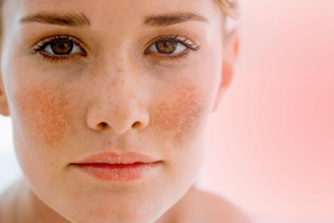 vitamin e to remove sun spots