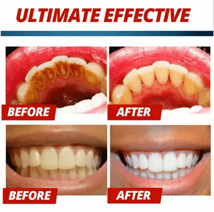 toothpaste to strengthen teeth and gums
