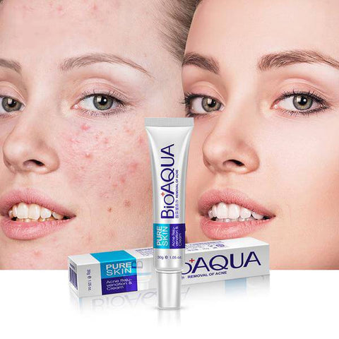creams to remove old scars