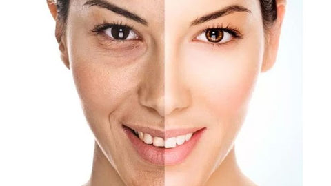 treatment with collagen creams
