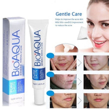 Upload image to gallery viewer, Acne Scar Removal Rejuvenation Cream