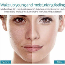 Upload image to gallery viewer, acne and blemish creams