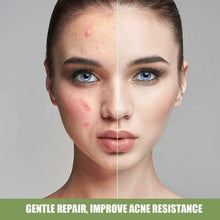 Upload image to gallery viewer, acne and blemish removal cream