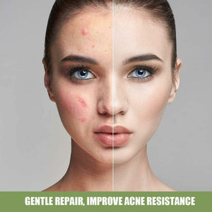 cream to remove acne and blemishes