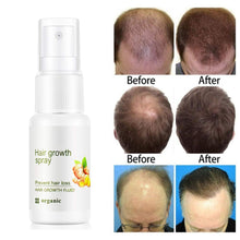 Upload Image to Gallery Viewer, Organic Hair Growth Spray