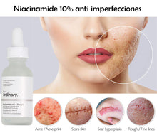 Upload image to gallery viewer, Niacinamide 10% + Zinc 1% - 30ml - The Ordinary