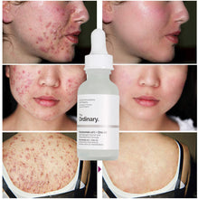 Upload image in gallery viewer, to remove acne scars