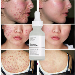 to remove acne scars