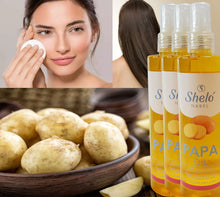 Load image in gallery viewer, shelo nabel's potato oil to moisturize