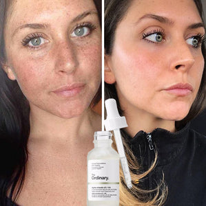 Melasma / Hyperpigmentation Face Anti-Aging Serums
