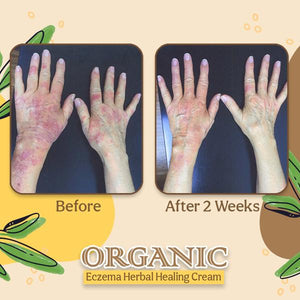 Cream to treat psoriasis on the hands