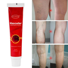 Load image in gallery viewer, Varicose Veins Treatment Cream Ointment