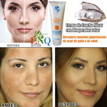 Upload image to gallery viewfinder, nacre shell cream to remove acne