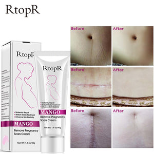 Anti-stretch mark creams produced by mango pregnancy