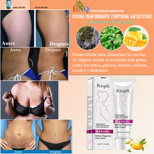 Load image in gallery viewer, rtopr anti stretch marks cream