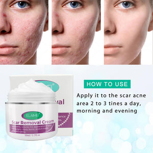 Cream for stretch marks and blemishes