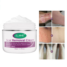 Upload Image to Gallery Viewer, Burn Scar Removal Cream