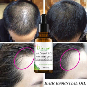 Essence to stop alopecia