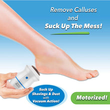 Upload Image to Gallery Viewer, Electric Callus Remover - Portable Dead Skin Foot File
