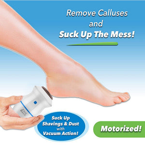 Electric Callus Remover - Portable Dead Skin Foot File