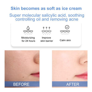 anti acne moisturizer