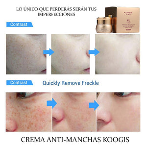 koogis anti-pigmentation facial cream