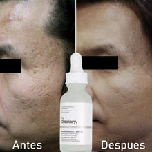 Upload image to the gallery viewer, such as removing acne holes