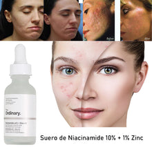 Upload image in gallery viewer, how to remove acne spots
