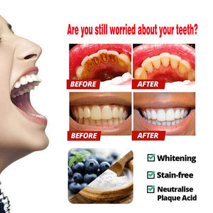 Intensive whitening toothpaste to remove stains
