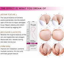 Upload Image to Gallery Viewer, Anti stretch marks pregnancy creams