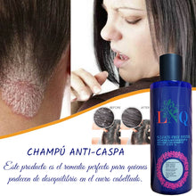 Load image in gallery viewer, anti psoriasis shampoo