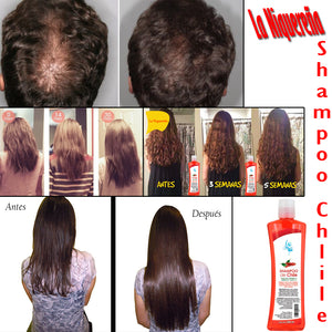results of shelo nabel chili shampoo