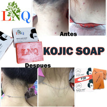 Load image into gallery viewer, kojic acid soap skin lightening soap