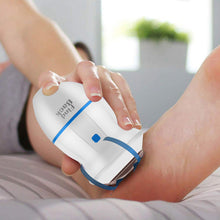 Upload image to gallery viewer, Rechargeable Electric Foot Callus Remover Tool