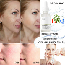 Load image in gallery viewer, hyaluronic acid anti aging serum