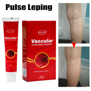Ointment to remove varicose veins from the legs