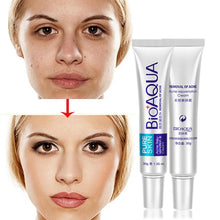Upload image to gallery viewer, which cream is good for erasing scars