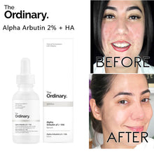 Upload Image to Gallery Viewer, Acne Spot Serum