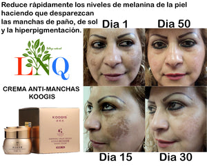 koogis anti dark spots facial cream