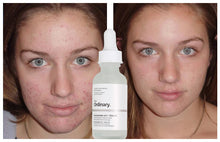 Upload Image to Gallery Viewer, Acne Spot Removal & Scar Removal Products