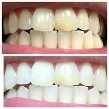 Blanqueamiento dental AP 24
