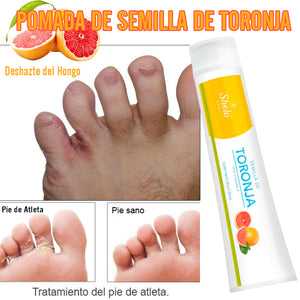 Grapefruit Seed Ointment for Athlete's Foot by Shelo Nabel